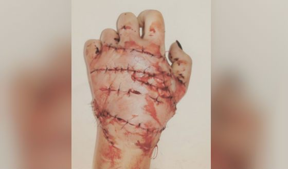 Doctors saved woman's hands amputated by axe