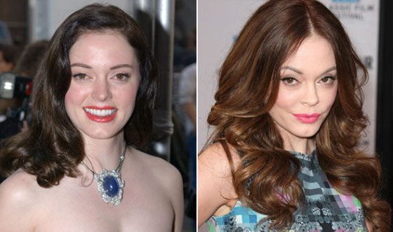 Rose McGowan before and after the accident