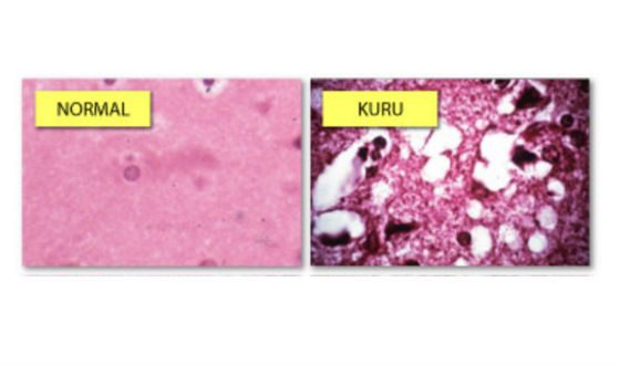Ткань мозга: норма и патология Куру