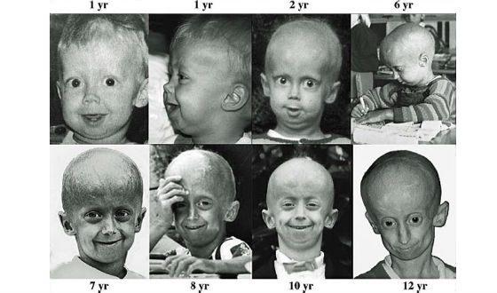 Развитие прогерии: от года до двенадцати лет