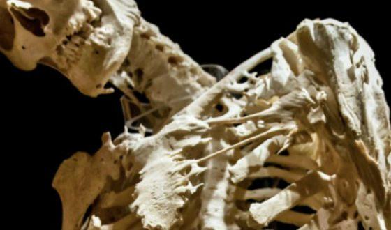 У больных с фибродисплазией мышечная ткань перерождается в костную