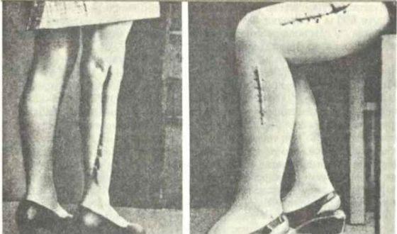 Нацисты разрезали людям тело и всыпали туда инородные предметы