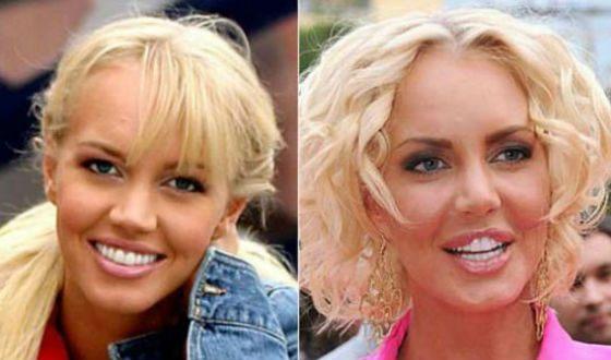 Пластические операции звезд с фото до и после