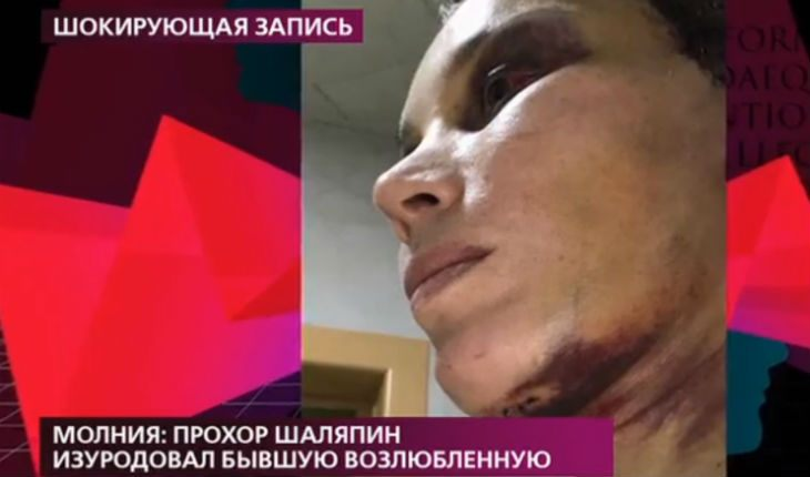 Шаляпина обвинили в жестоком избиении