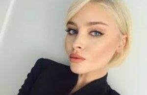 Алена Шишкова опровергла разговоры о том, что она больна подагрой