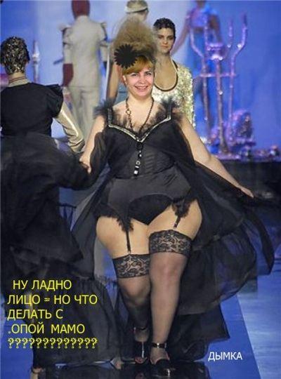 Фотожаба. Ирина Агибалова преобразилась после операции