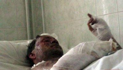 В прошлом году 34-летний Сергей Тэре, подорвавшийся на бомбе, подкинутой на территорию «Дома-2», оглох на оба уха и получил много травм