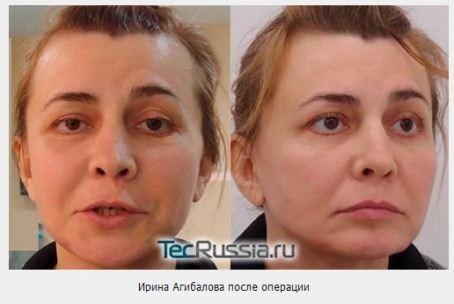 Результаты пластической операции Ирины Александровны