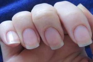 Крепкими ногтями сегодня может похвастаться далеко не каждая