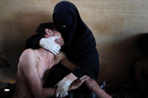 Лучшая фотография 2011 года была снята в Йемене