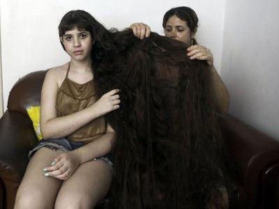Волосы для Наташи стали проблемой