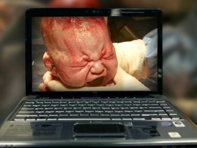 Роды сняли с помощью МРТ