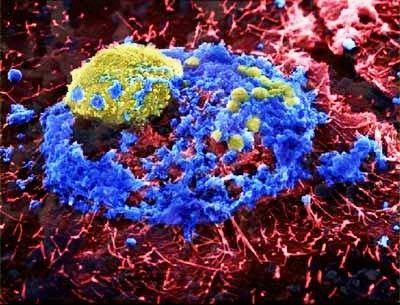 Вирус птичьего гриппа под микроскопом