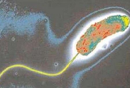 В Казахстане в сточных водах города Актау обнаружен вирус Холеры
