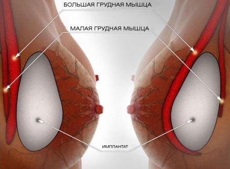 как увеличить грудь и попку