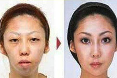 Супруга до и после пластики