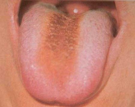 Бьорк удалили полипы в горле.