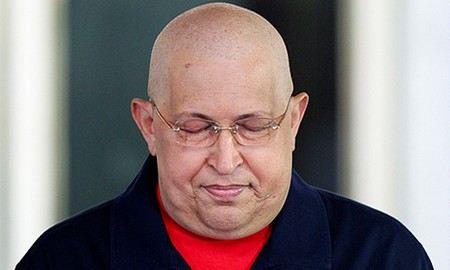 Президенту Венесуэлы Уго Чавесу сделали операцию в столице Кубы.