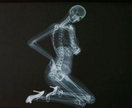Рентгеновские снимки моделей