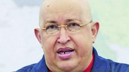 Стали известны новые подробности о состоянии здоровья президента Венесуэлы Уго Чавеса.