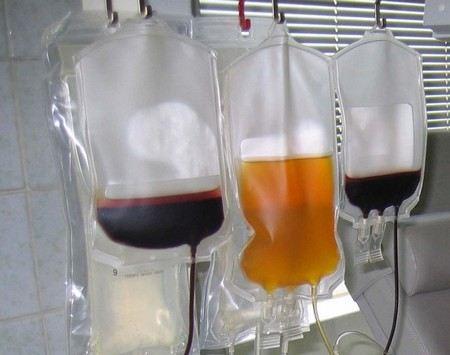 В России появился черный рынок крови после того, как донорство стало безвозмездным.