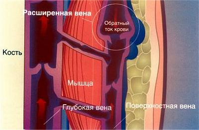 Так выглядит нарушение кровотока