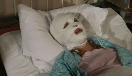 В Москве девушку со спины облили кислотой.