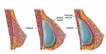 С помощью пластики можно значительно преобразить грудь