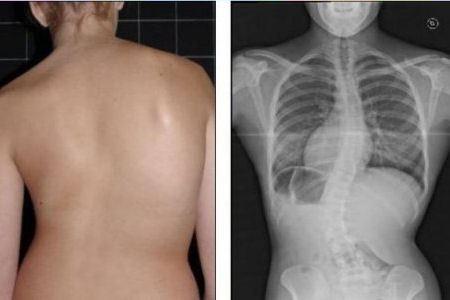 Рентгеновские снимки Лианн