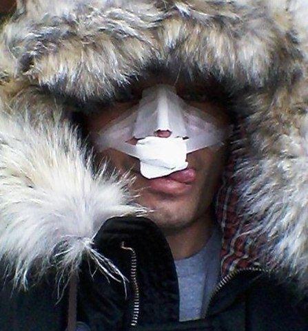 Фото Рустама Солнцева после пластики носа