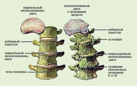 Метаморфозы позвоночника