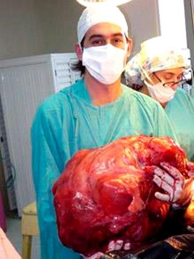 Аргентинские хирурги вырезали 25-килограммовую опухоль