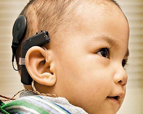 Ученые разработали инновационный имплантат для слабослышащих