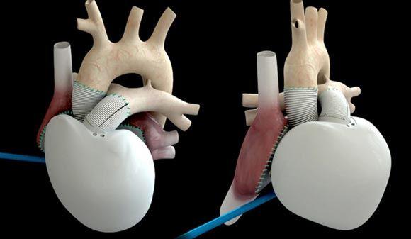 Во Франции скончался мужчина, которому впервые в истории вживили искусственное сердце