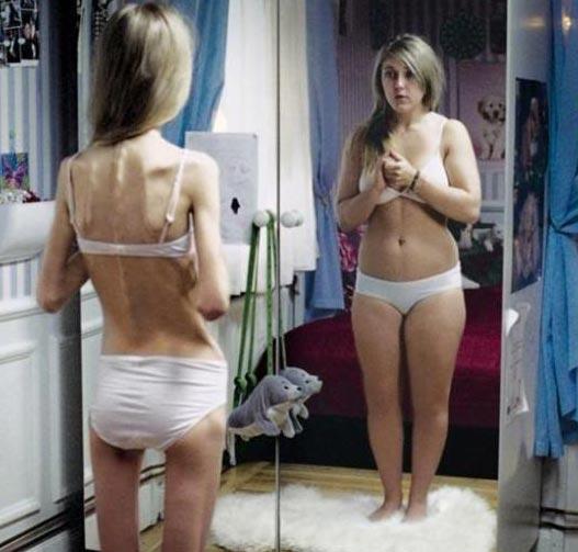 Увлечение соцсетями может привести к анорексии