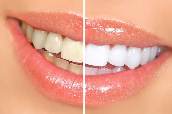 Люминиры сделают улыбку белоснежной