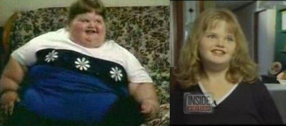 Самой толстой девочке удалось похудеть