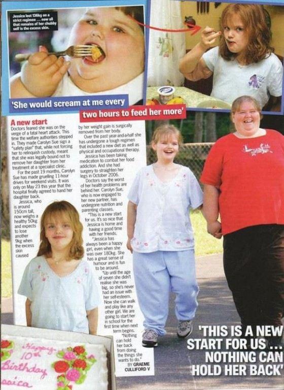Сегодня Джессика Леонард выглядит похудевшей и хорошо себя чувствует