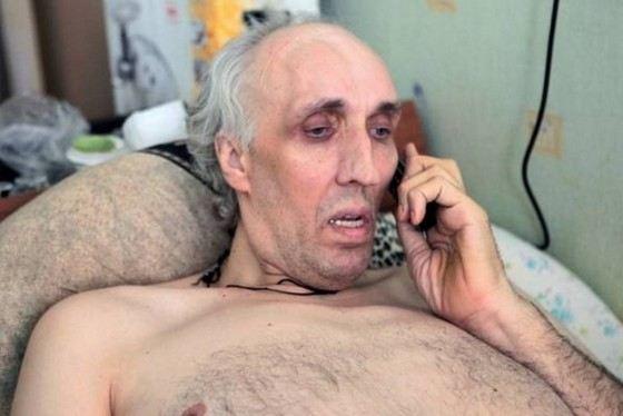 Перед смертью рост баскетболиста Александра Сизоненко составлял 245 см