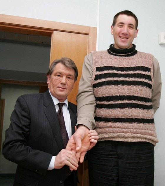 Леонид Стадник человек с самыми длинными пальцами