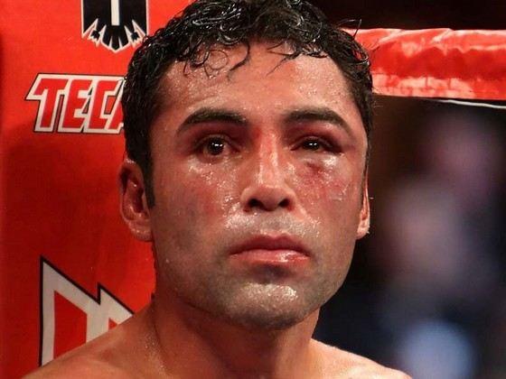 У боксера Оскар Де Ла Хойа красивые глаза (если дело обходится без травм)