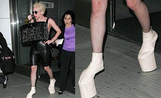 Обувь на высоких каблуках Вред высоких каблуков Почему