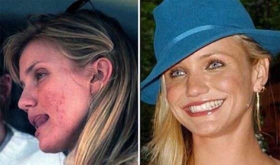 Actress Cameron Diaz has serious skin problems, including acne.
