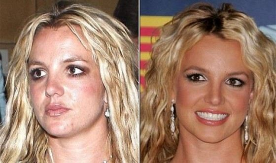 Britney Spears has acne too.