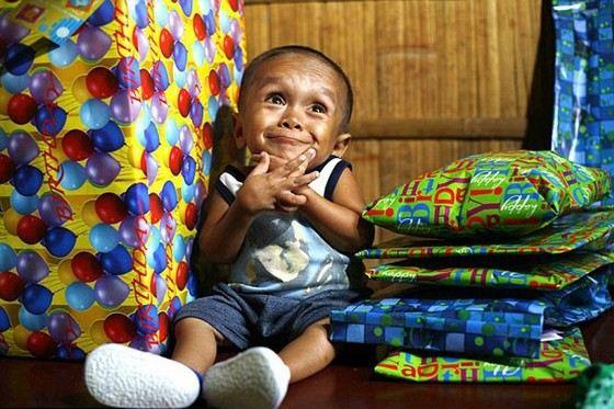 Джунри Балуинга - один из самых маленьких людей, живущих сегодня на земле