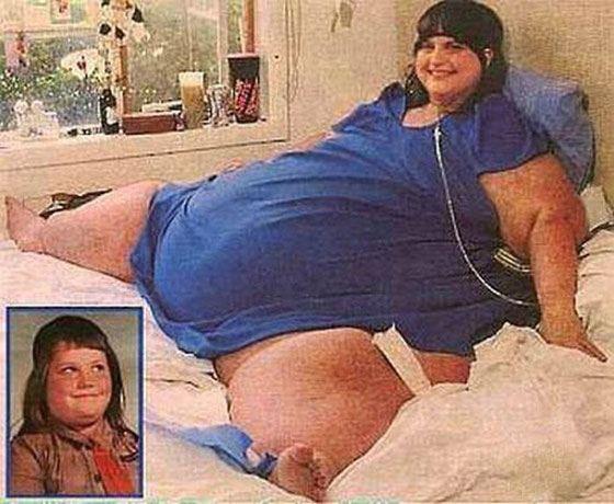 Кэрол Йегер - самый толстый человек в мире