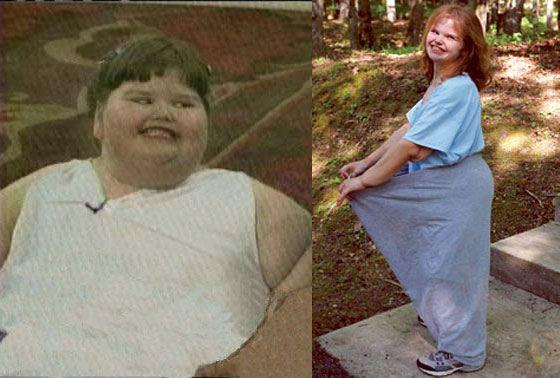 Джессика Леонард - самый толстый ребенок в мире (до и после похудения)