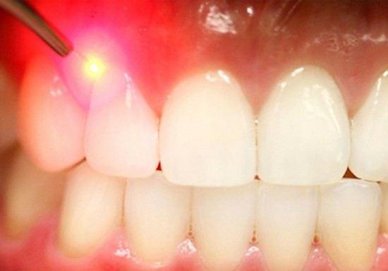 Лазерный луч поможет безболезненно восстановить поврежденные участки зубов