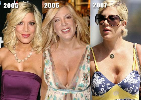 Тори Спеллинг и ее неудачные операции над грудью