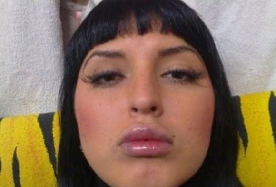 Дом-2: Экс-участница показала страшные губы после пластической операции